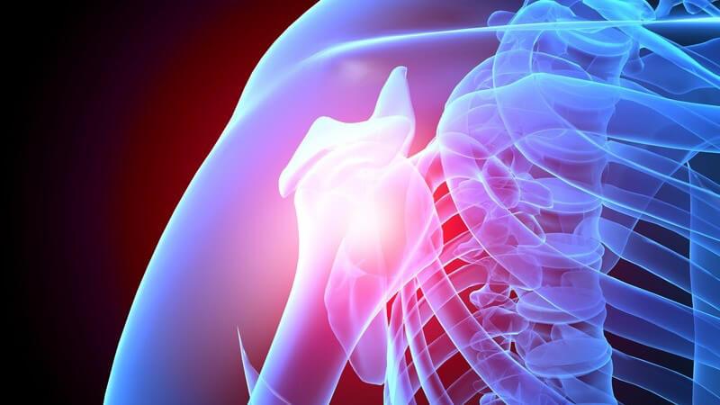 Verletzungen der Schulter bei sportliche Betätigung