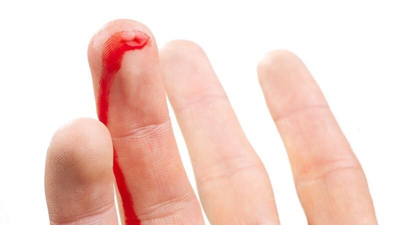 Wissenswertes zur Hämostase und zu den Werten der Blutgerinnung (Blutgerinnungstest)