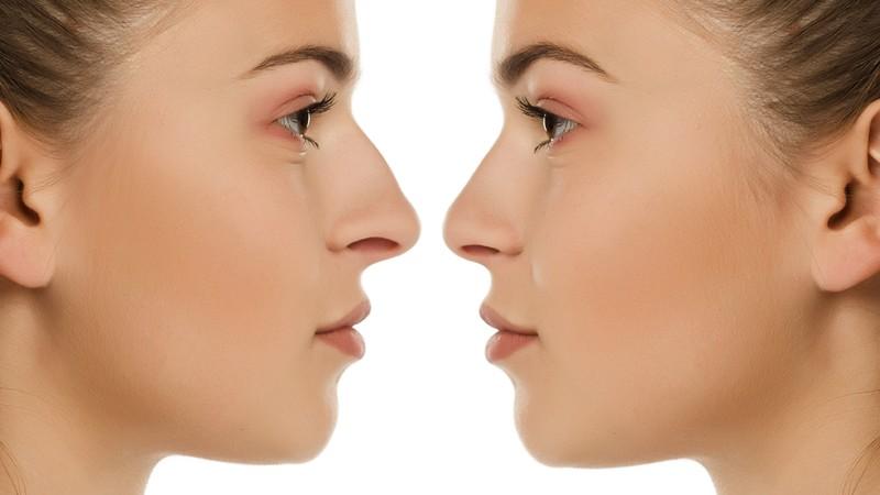 Seitenprofil vor und nach einer Nasenkorrektur