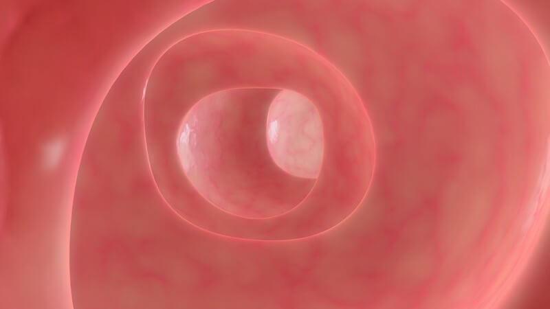 Die Entstehung von Morbus Crohn und wie man die Ileitis terminalis erkennen und behandeln kann
