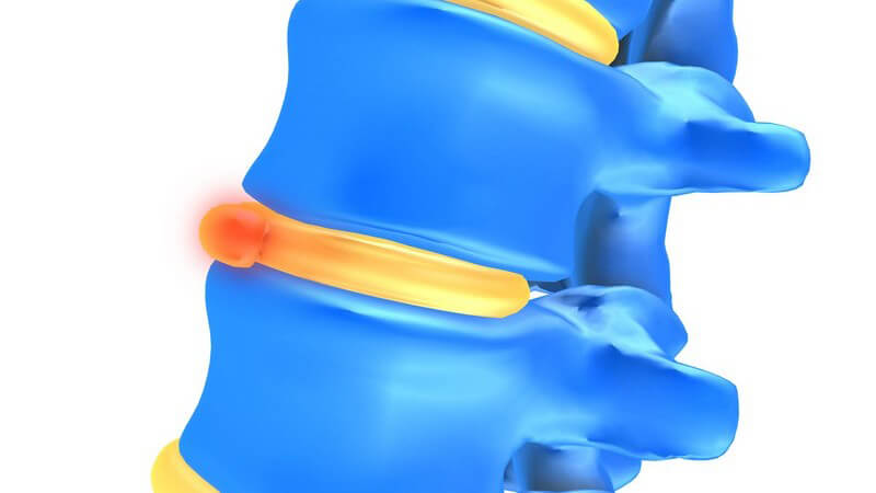Häufig ist ein Bandscheibenvorfall im Bereich der Lenden- oder Kreuzbeinwirbels der Auslöser