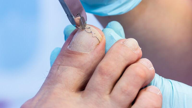Eingewachsene Nägel - Ursachen, Symptome und Behandlungsmöglichkeiten