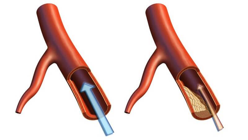 Primäre Lipidstoffwechselstörungen sind angeboren, während die sekundäre Art meist durch Erkrankungen entsteht