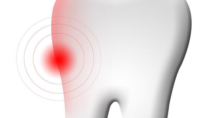 In den meisten Fällen wird die Zahnnerventzündung durch Karies ausgelöst