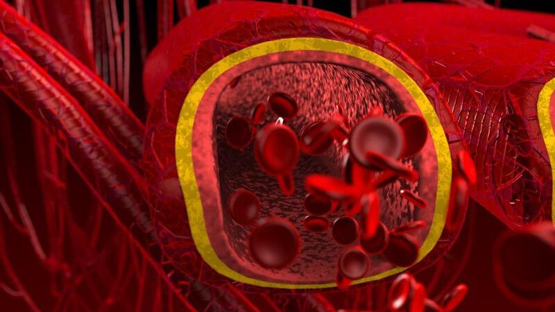 Das chronisch venöse Stauungssyndrom gilt als Folge einer Phlebothrombose in den Beinen