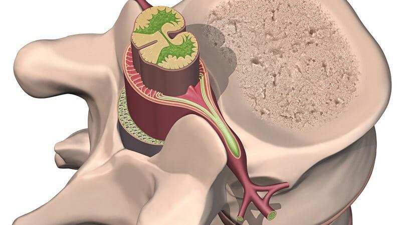 Beim Plasmozytom handelt es sich um eine bösartige Entartung der Plasmazellen