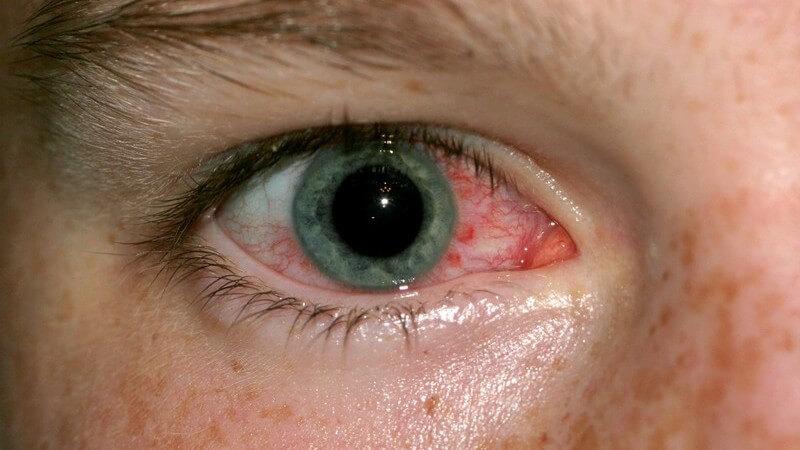 Vor allem die Bindehaut ist von allergischen Reaktionen am Auge betroffen