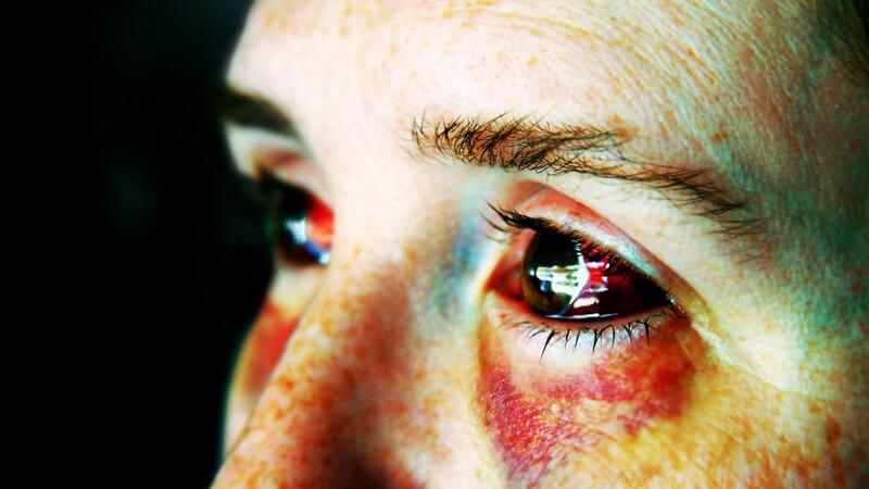 Säuren und Laugen gelten als Auslöser einer Verätzung am Auge