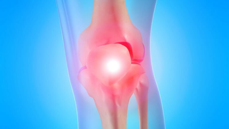 Wiederkehrende Schmerzen in der oberen Wadenregion sowie der Kniekehle können ein Anzeichen sein