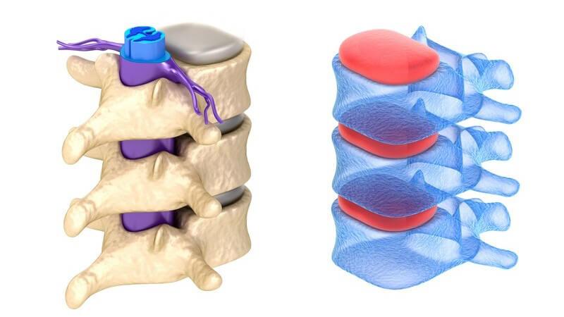 Wissenswertes zur spinalen Stenose
