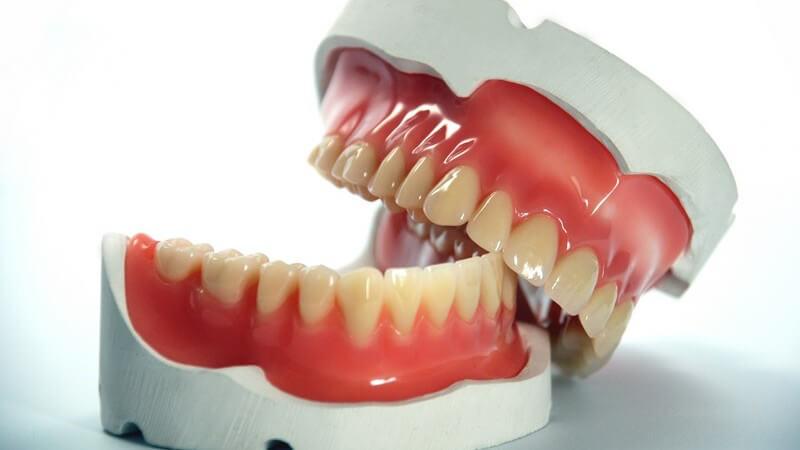 In Oberkiefer und Unterkiefer befinden sich die Zähne, die für die Zerkleinerung von Nahrung notwendig sind