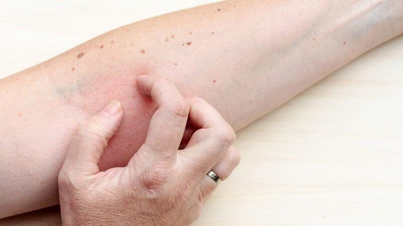 Wunde, nässende und entzündete Stellen in feuchten Hautfalten
