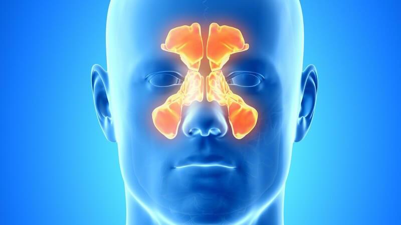 Eine Schleimhautentzündung in den Kieferhöhlen tritt meist infolge einer Erkältung auf