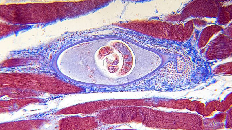 Allgemeine Informationen zu Fadenwürmern (Nematoden) und der Infektion beim Menschen