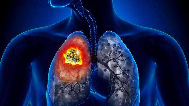 Häufigste Lungenkrebsform mit verschiedenen Subtypen