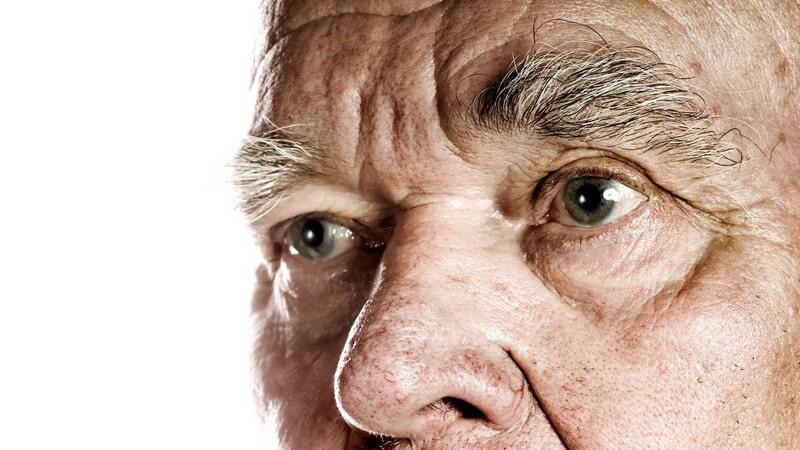 Knollenartige Nase infolge der Hautkrankheit Rosazea