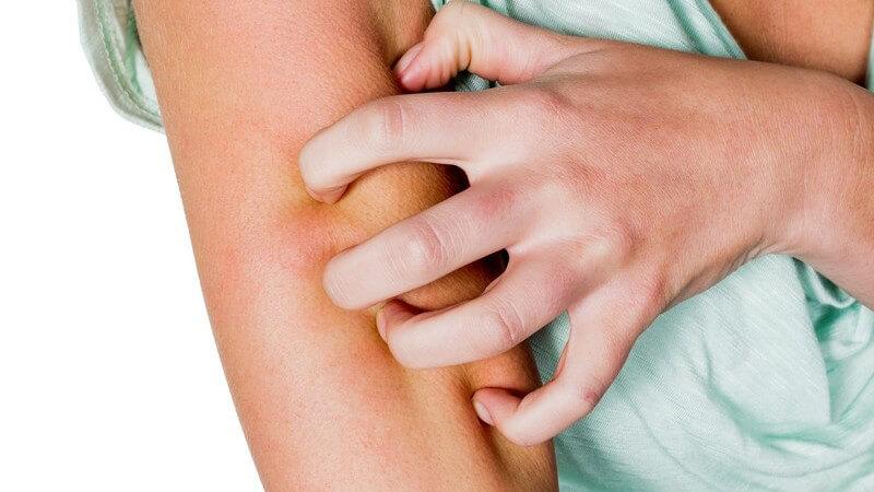 Durch Fadenpilze verursachte Pilzinfektion auf der Haut