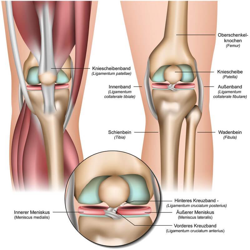 Außenbandriss Knie Symptome