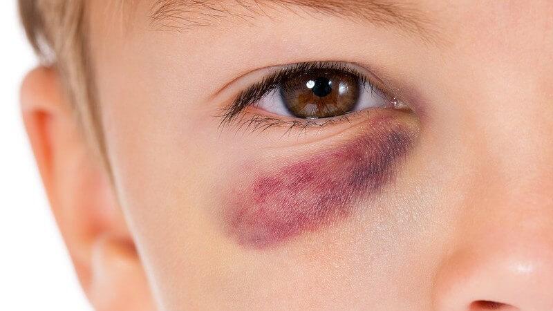 Bruch des Augenhöhlenbodens durch stumpfe Gewalteinwirkung