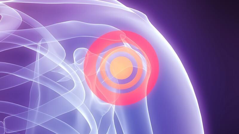 Ursachen, Symptome und Therapie einer Schulterverrenkung