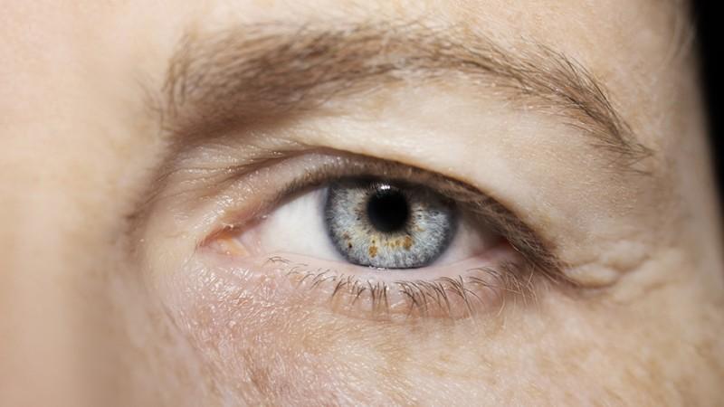 Frau mit leichter Augenlidsenkung