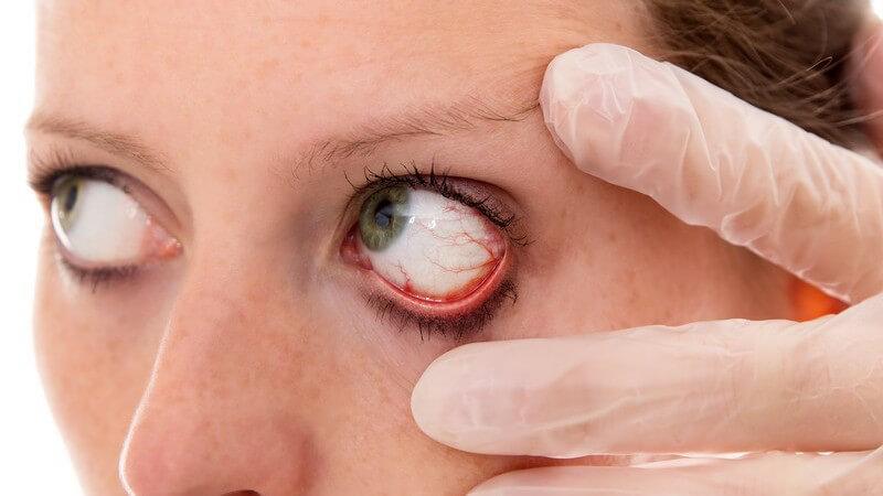 Schwellung der Bindehaut im Auge als allergische Reaktion oder infolge einer Infektion