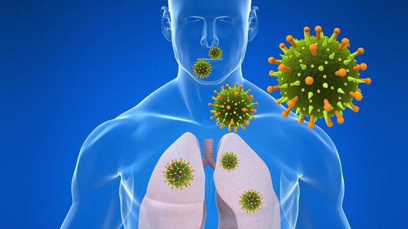 Lebensbedrohliche Infektion mit dem SARS-assoziierten Coronavirus