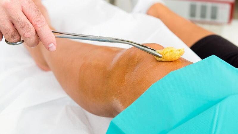 Arthroskopie des Kniegelenks zu diagnostischen oder therapeutischen Zwecken