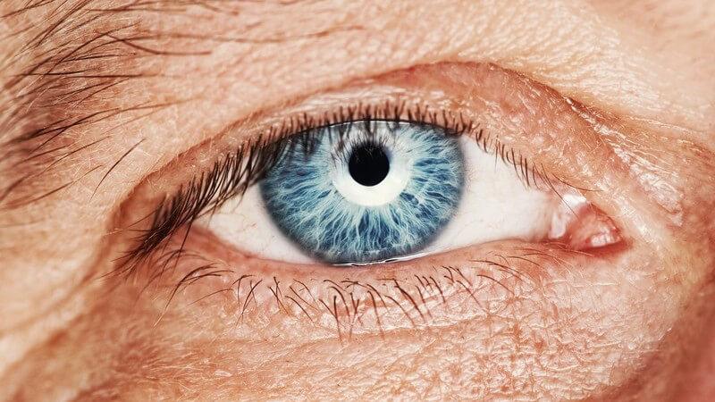 Altersweitsichtigkeit infolge des natürlichen Alterungsprozesses der Augenlinse
