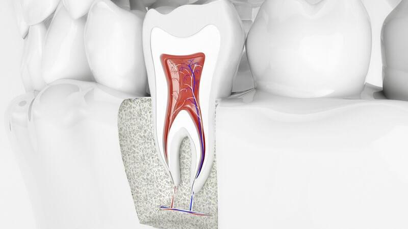 Zumeist durch Karies verursachte Zahnwurzelschädigung