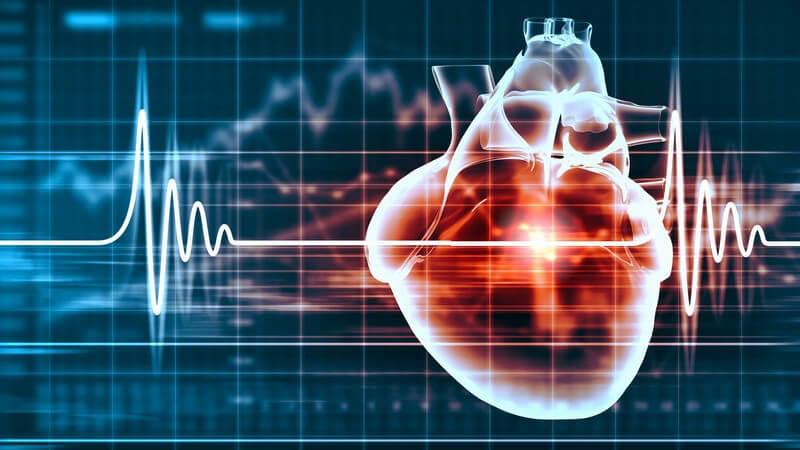 Wissenswertes zur ventrikulärer Fibrillation (VF)