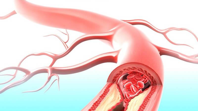 "LDL gilt als ""schlechtes"" Cholesterin"
