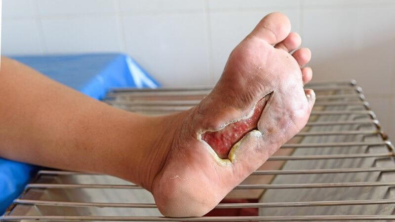 Wissenswertes zu Fuß- und Zehenprothesen