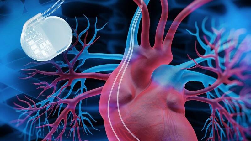 Ein implantierter Schrittmacher dient als Taktgeber für das Herz