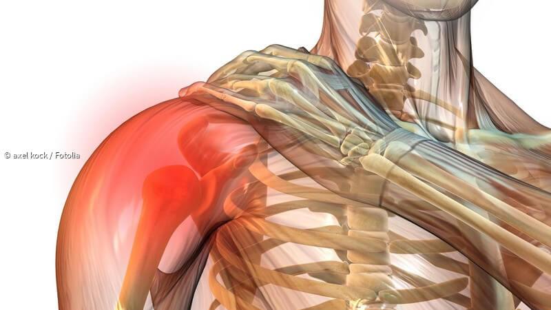 ᐅ Impingement-Syndrom der Schulter