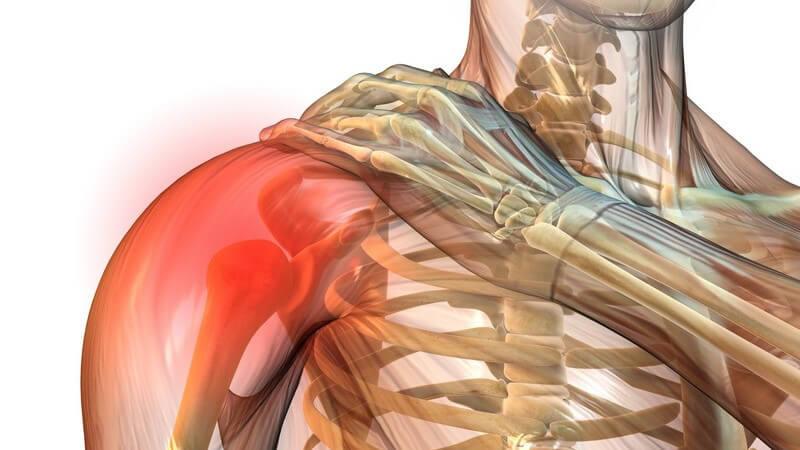 Schmerzen und Bewegungseinschränkungen durch das Engpass-Syndrom