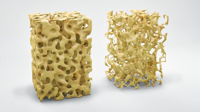 Die Entstehung der Osteoporose und wie man den Knochenschwund erkennen und behandeln kann