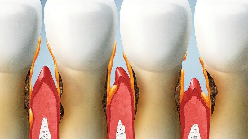 Die Entstehung einer Parodontitis und wie man die Parodontose erkennen und behandeln kann
