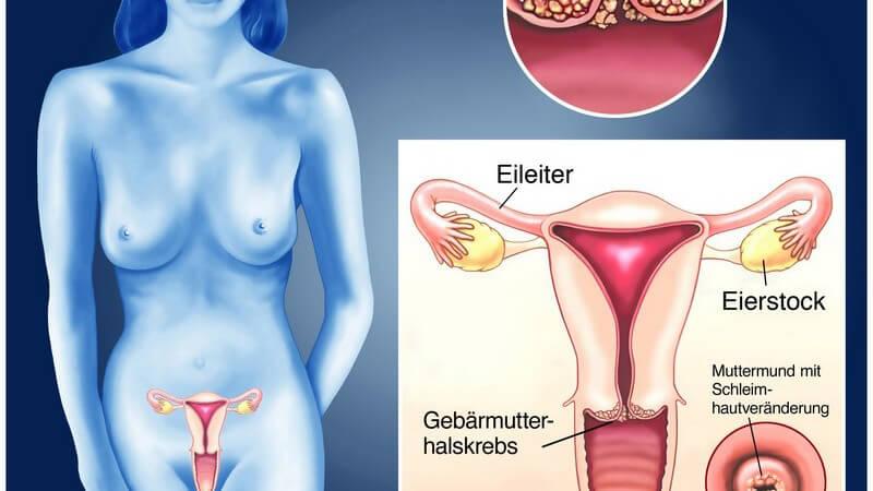 Wissenswertes zur Impfung gegen Gebärmutterhalskrebs