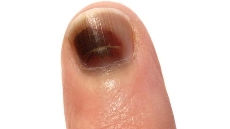 Entsteht beispielsweise durch starke Stöße auf den Nagel oder durch Quetschungen sowie dem Einklemmen