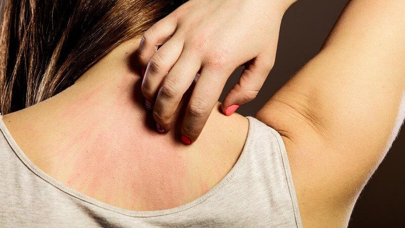 Als Auslöser gelten Erkrankungen wie Tuberkulose, Morbus Crohn oder Sarkoidose