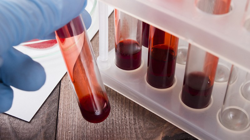 Bluttest auf Hämoglobin