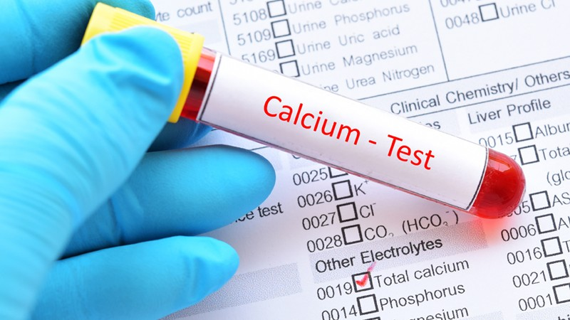 Bluttest auf Kalzium