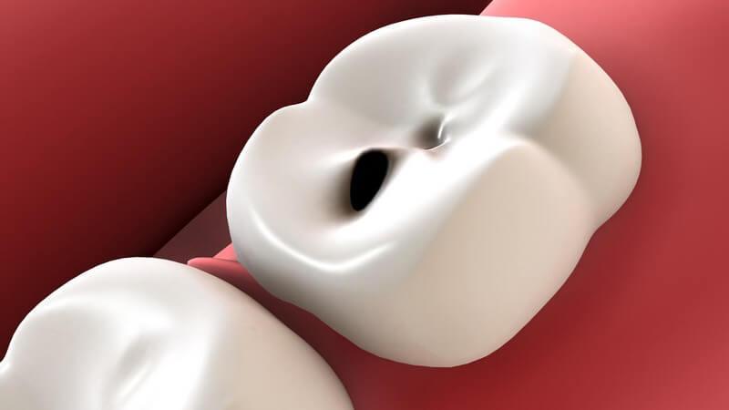 Je nach Art des Hohlraumes im Zahn teilt man ihn in verschiedene Kavitätenklassen nach GV Black ein