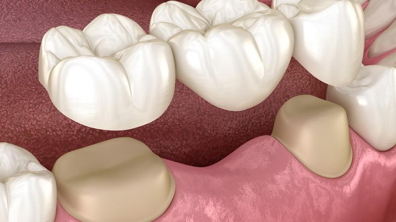 Wissenswertes zu Zahnbrücken