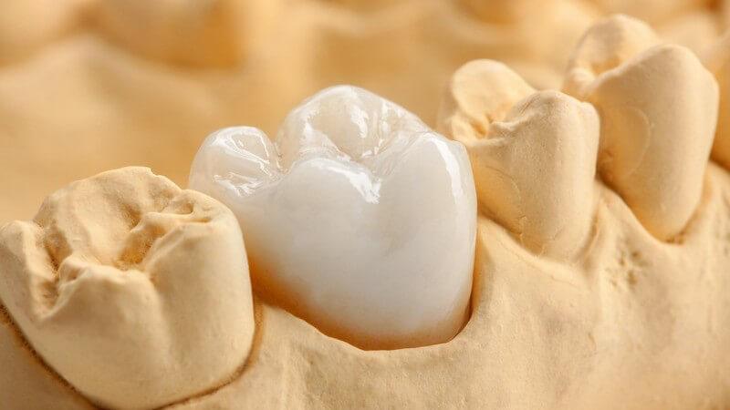 Wissenswertes zur Überkronung von Zähnen