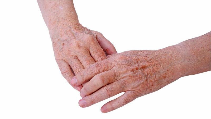Die Entstehung von Altersflecken und wie man sie erkennen und behandeln bzw. entfernen kann