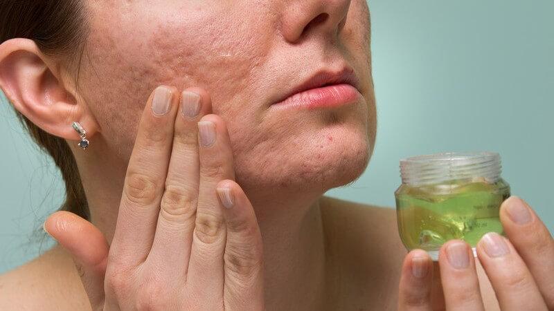 Ein medizinisches Make-up kann die Lebensfreude nach Erkrankung oder einem Unfall zurück ins Leben bringen