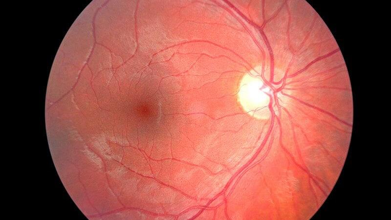Die Entstehung einer diabetischen Retinopathie und wie man sie erkennen und behandeln kann