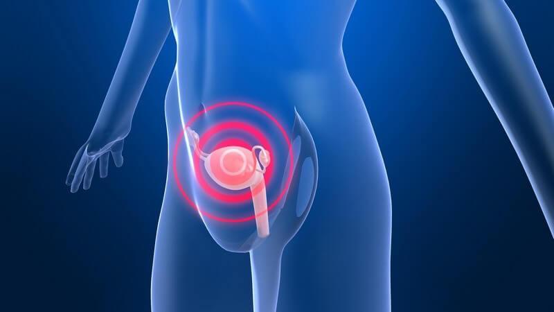 Die Entstehung von Gebärmutterrebs und wie man ihn erkennen und behandeln kann